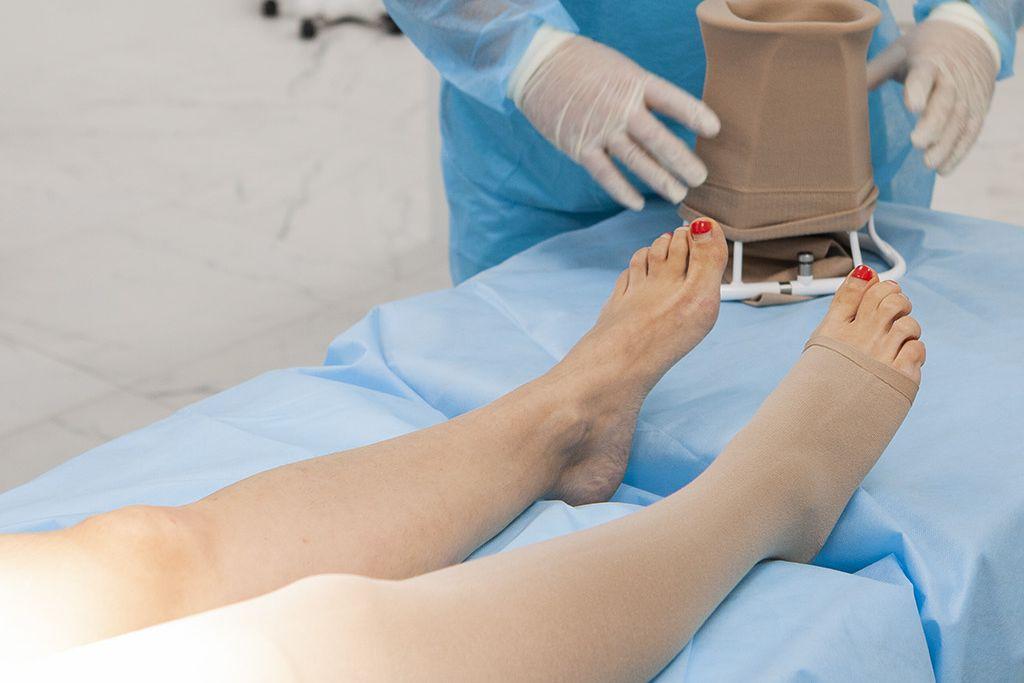 Склерототерапия вен нижних конечностей
